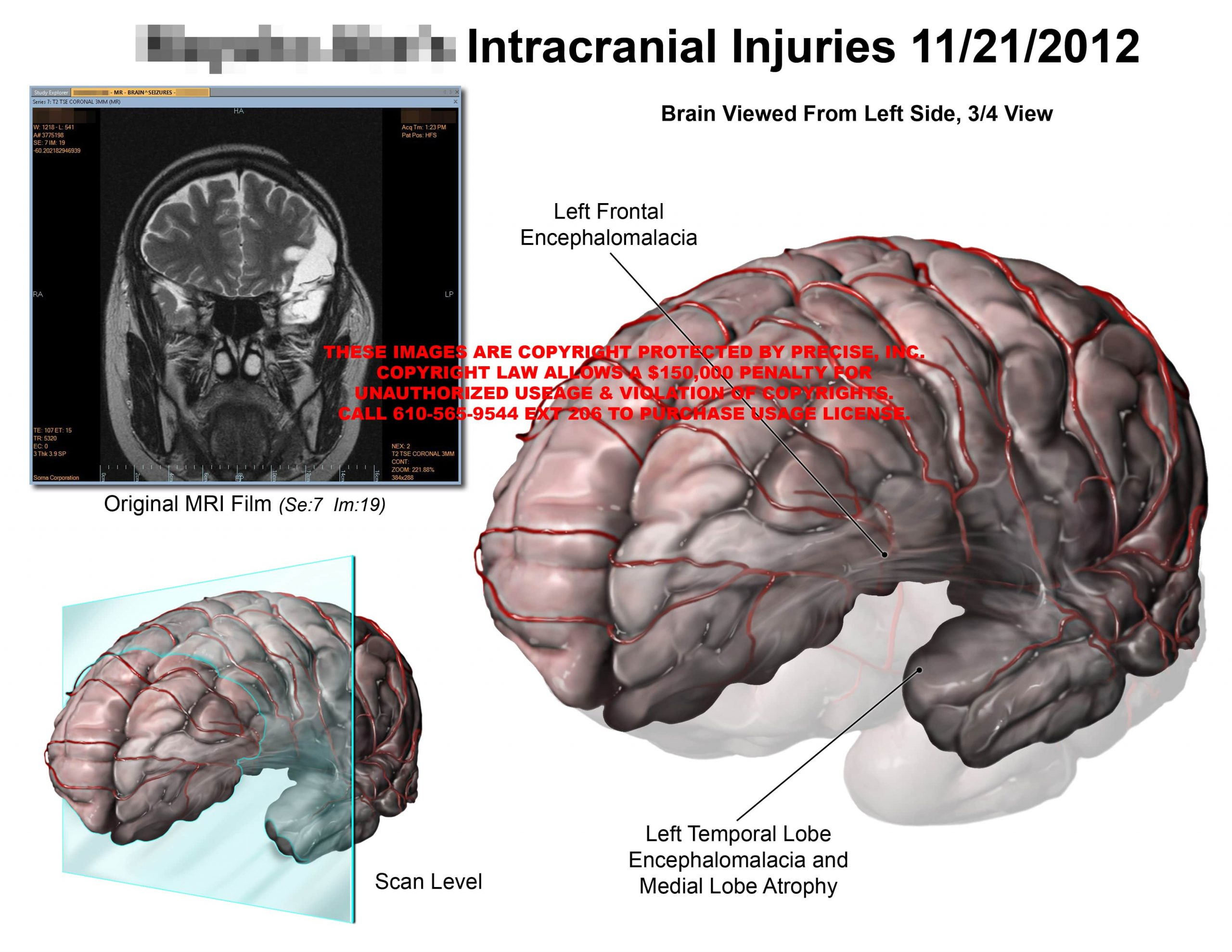 Intracranial Injuries