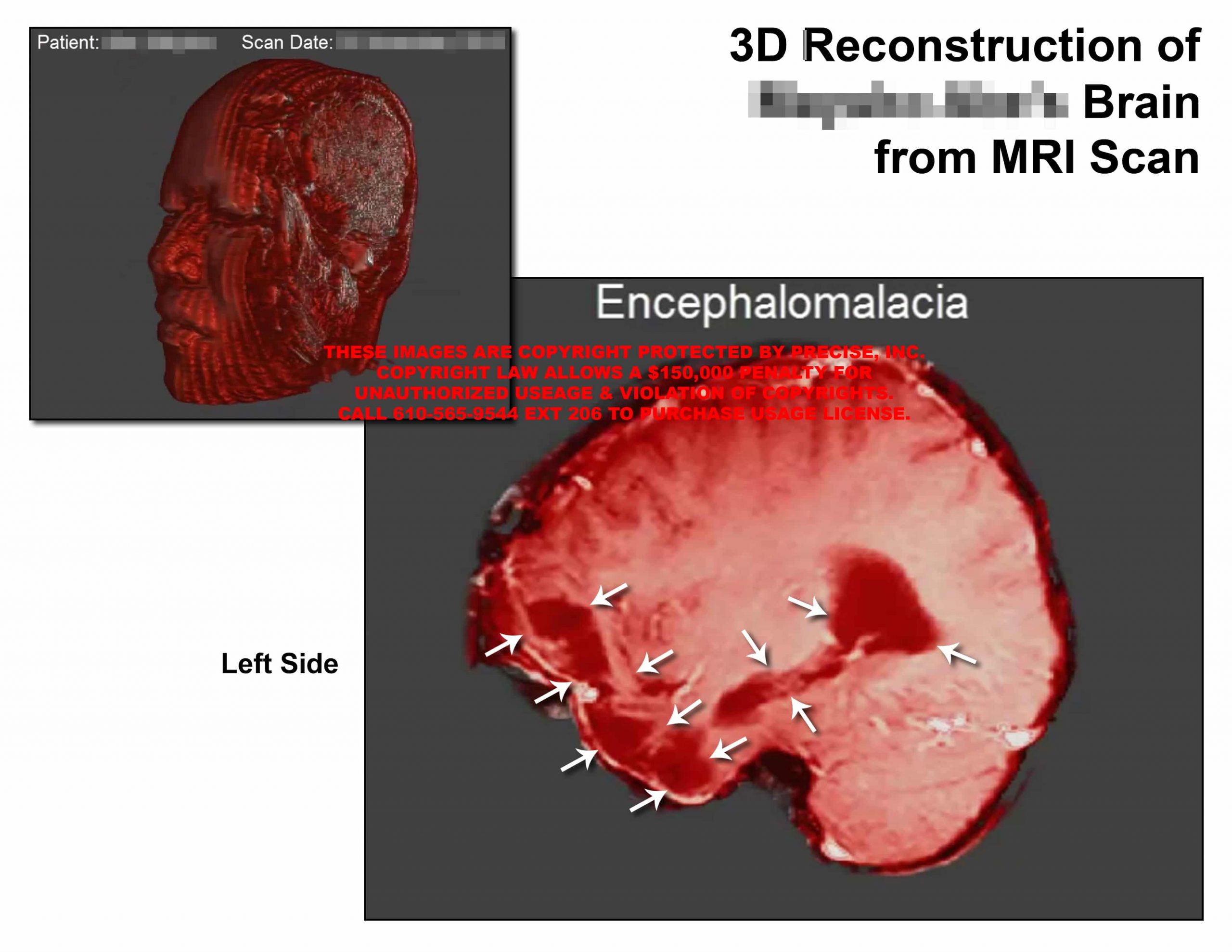 3D Reconstruction of Brain from MRI Scan II