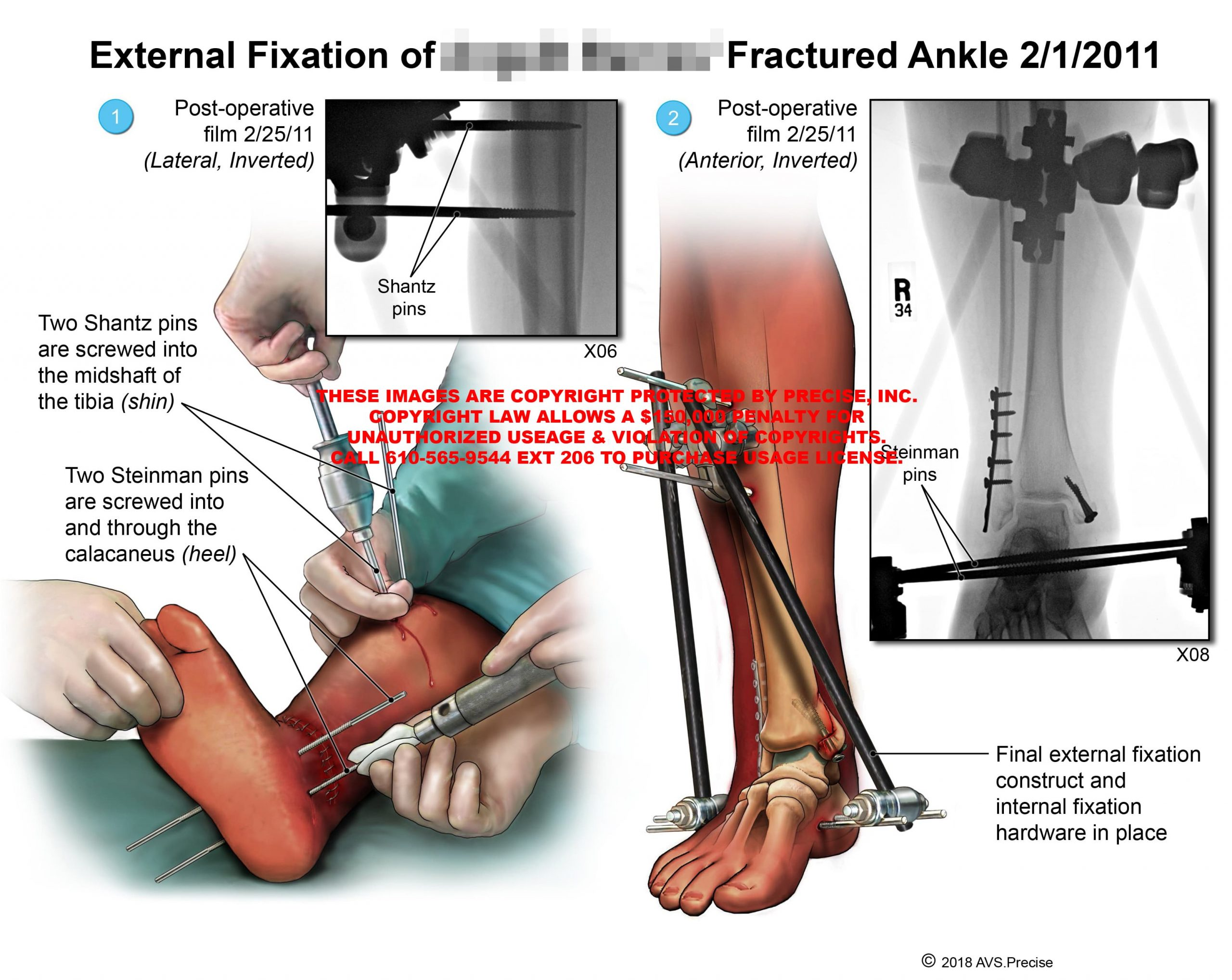 External Fixation of Fractured Ankle